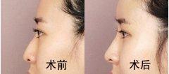 鼻尖整形有哪些并发症?