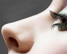 驼峰鼻矫正效果自然吗