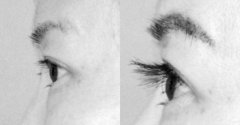 睫毛种植手术多少钱