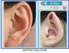 矫正招风耳方法有哪些