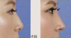 <b>注射隆鼻和假体隆鼻的区别?</b>