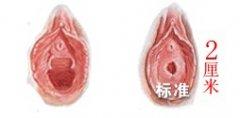 荆州处女膜修复