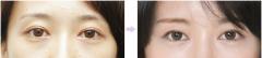 <b>双眼皮失败还能被修复吗?</b>
