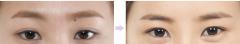 <b>荆州做双眼皮修复要多少钱</b>