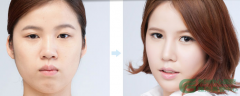 <b>下颌角整形有没有危险?</b>