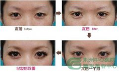 <b>哪些情况属于双眼皮手术失败?</b>
