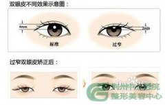 <b>荆州割双眼皮修复很难吗?</b>