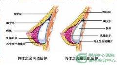 荆州关于隆胸是怎么修复的?