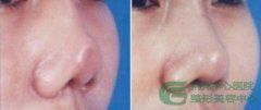 <b>鼻尖整形手术的适应症有哪些?</b>