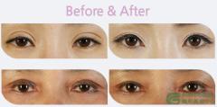 <b>双眼皮术后出现两眼不对称该怎么修复?</b>