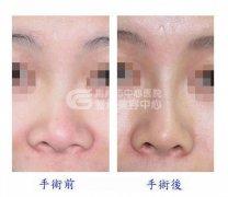 荆州隆鼻手术失败该怎么办?