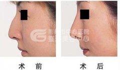 驼峰鼻校正后多久能恢复