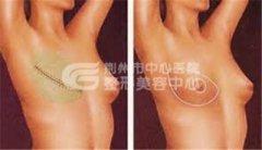 乳房再造,让女性的魅力不断