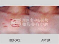 激光去疤的治疗范围有哪些?