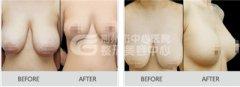 乳房下垂,身材曲线尽失