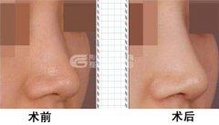 导致隆鼻手术失败的原因有哪些?