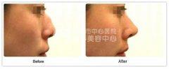<b>驼峰鼻矫正手术的术后有哪些注意事项?</b>