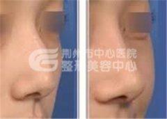 驼峰鼻矫正手术是怎么回事的呢?