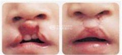 唇腭裂应该如何治疗