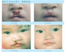 唇腭裂修复*好几岁做手术?