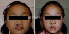 什么原因导致唇腭裂