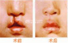 导致胎儿唇腭裂原因是什么