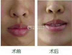 厚唇手术怎么改薄