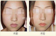 <b>厚唇改薄 术前术后要注意</b>