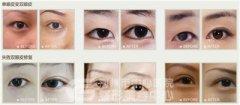 <b>双眼皮手术让心灵窗户更美丽</b>