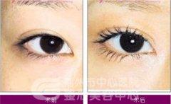 割双眼皮要多久恢复自然