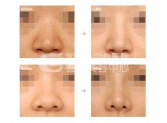 鼻翼缩小术的优势有哪些?