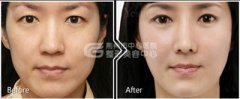 鼻翼缩小术后手术部位会留下疤痕吗?