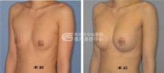 假体隆胸术优势有哪些呢