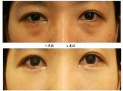 <b>黑眼圈还有不同的类型,涨姿势了!</b>