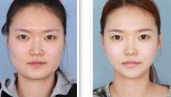 <b>磨骨改脸型手术方法的介绍</b>