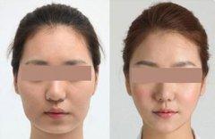 荆州下颌角整形手术需要多少钱?
