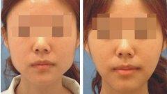 去下颌角术后应该注意哪些事项?