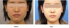 <b>下颌角手术后皮肤会不会松弛?</b>