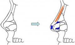 朝天鼻矫正手术后应该注意哪些事项?