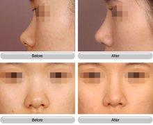 <b>假体隆鼻失败多久可以重做?</b>