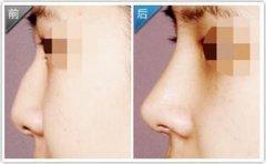 <b>隆鼻假体如何取出?</b>