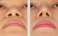 <b>隆鼻假体取出能恢复原样?</b>