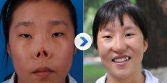 <b>全鼻再造手术如何进行?</b>