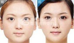 荆州注射进口瘦脸针的价格