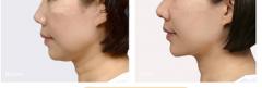 <b>Ulthera音波拉皮除颈纹效果怎么样?</b>