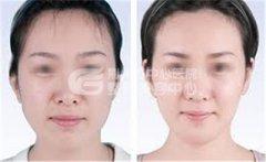 <b>注射瘦脸针之后要怎么护理?</b>