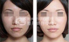 <b>光子嫩肤能祛除脸上的雀斑么?</b>