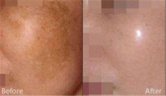 <b>怎样预防晒斑的出现呢?</b>