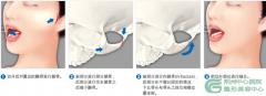 颧骨整形后多长时间能消肿?