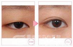 <b>荆州割韩式双眼皮需要多少钱呢?</b>